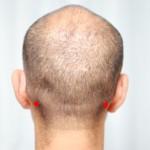 頭のツボ大辞典:「完骨(かんこつ)」の位置と効能